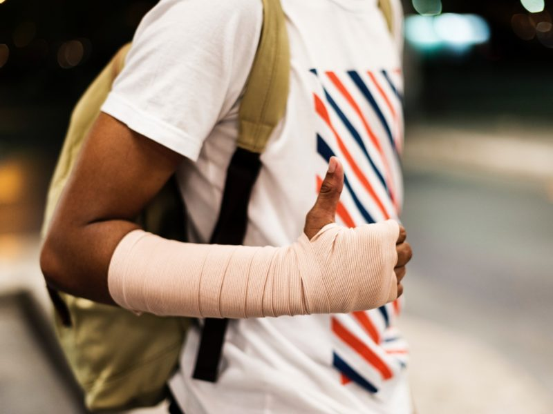 a man wearing a cast on his arm